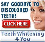 Teeth Whitening 4 You